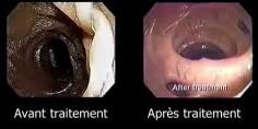 intestins-avant-apres